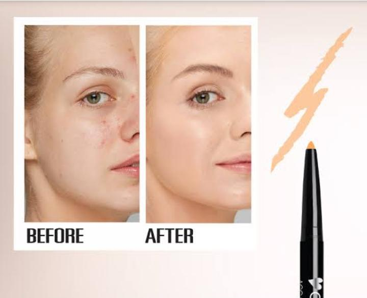 best concealer for dry skin and acne